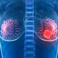 inteligencia artificial como método para detectar el cáncer