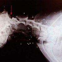 regenerar huesos con una impresora 3D Portada