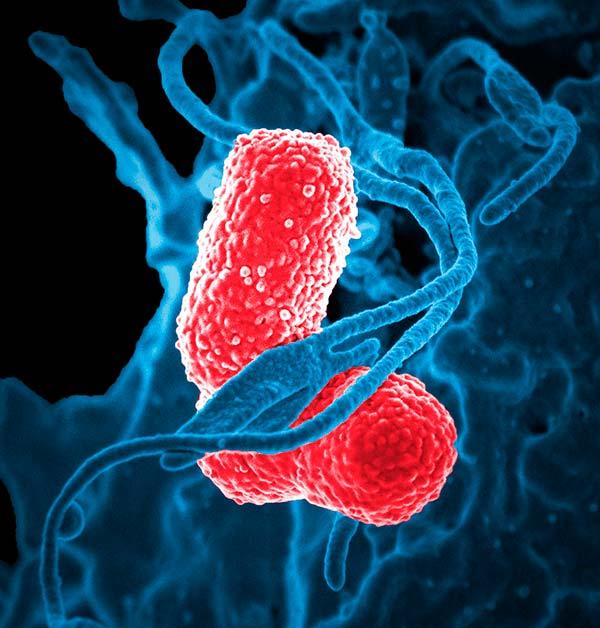 Fusobacterium nucleaum