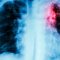 curar la fibrosis pulmonar portada