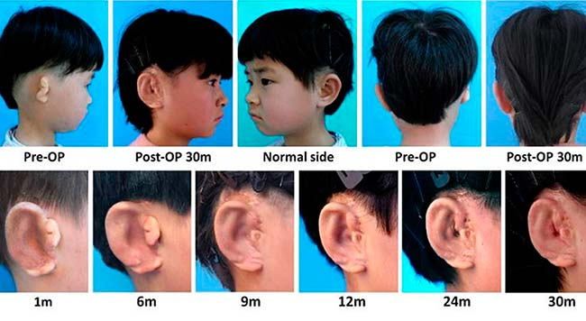 implantación orejas impresas 3D