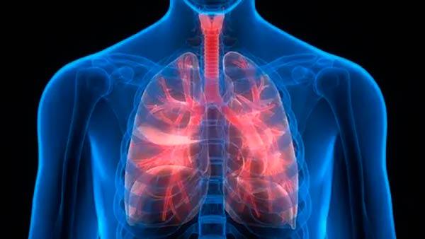 enfermedades respiratorias polvo